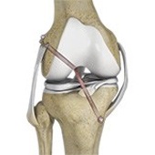 Multiligament Reconstruction of the Knee