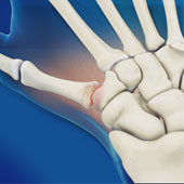 Surgery for Thumb and Digit Arthritis